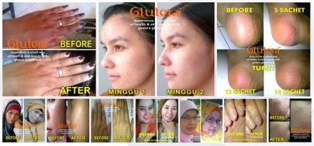 glutera_glutathione_indonesia2
